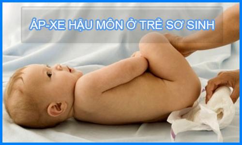 kiến thức bệnh áp xe hậu môn ở trẻ sơ sinh các mẹ bắt buộc phải biết