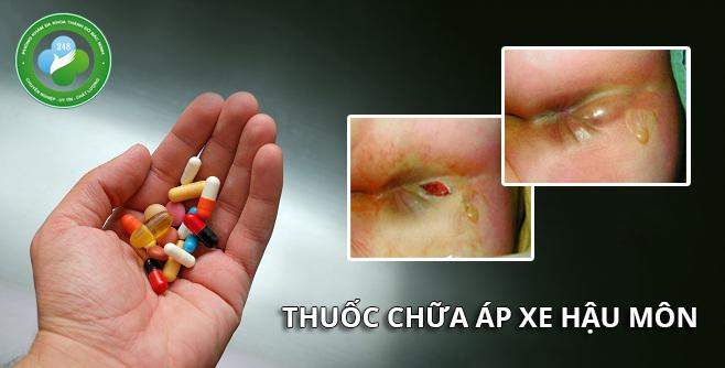 thuốc uống chữa áp xe hậu môn đơn giản