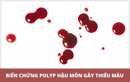 biến chứng bệnh polyp hậu môn có thể gây thiếu máu
