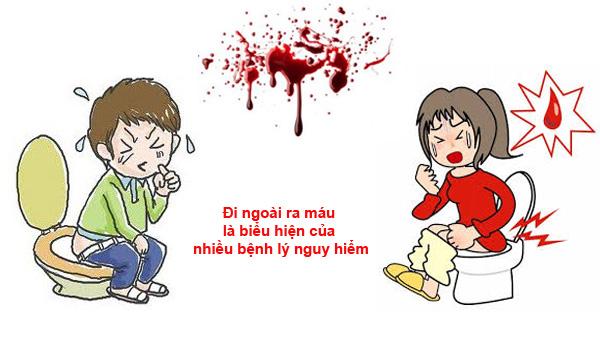 Đau bụng đi ngoài ra máu chớ nên coi thường!!!