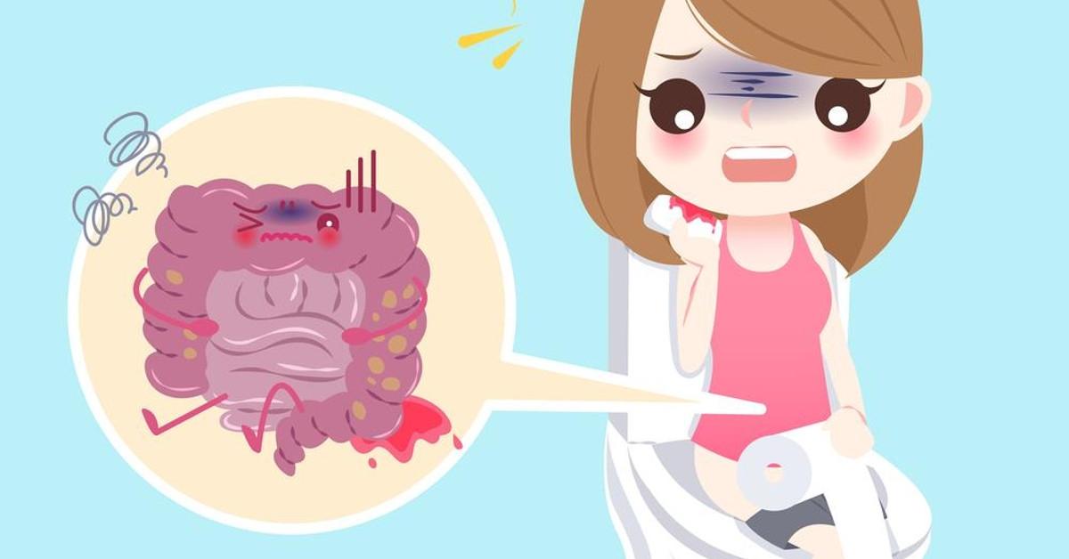 Đi ngoài ra máu tươi: dấu hiệu cảnh báo chớ nên coi thường