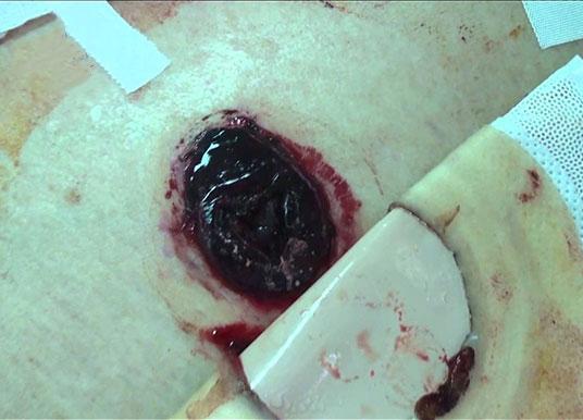 biến chứng polyp hậu môn gây hoại tử và nguy cơ mắc các bệnh hậu môn khác