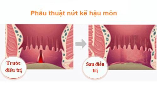 Phương pháp phẫu thuật nứt kẽ hậu môn triệt để bệnh hoàn toàn