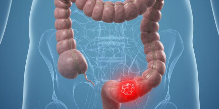 Viêm loét trực tràng gây ra hiện tượng đi ngoài ra máu