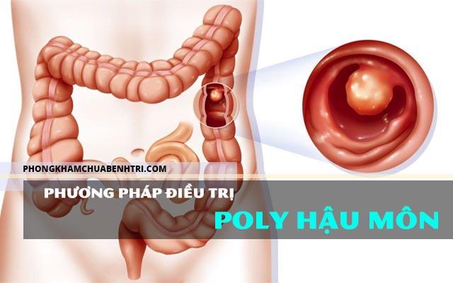 3 Phương pháp điều trị polyp hậu môn phổ biến nhất hiện nay