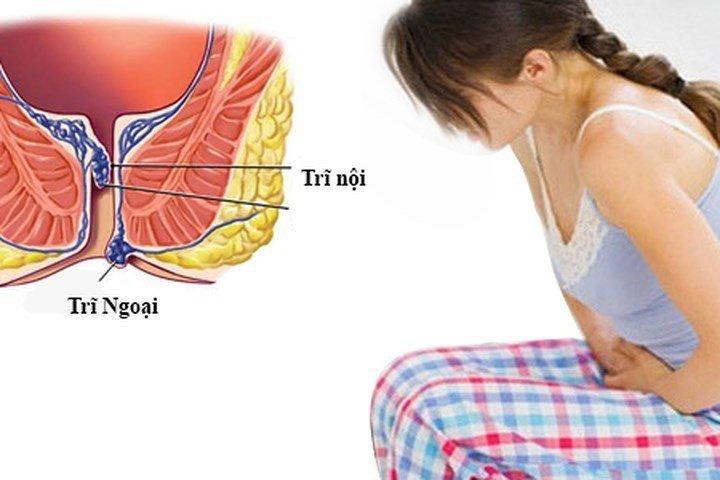 Mổ trĩ nội phương pháp điều trị hiệu quả đối với bệnh trĩ nặng