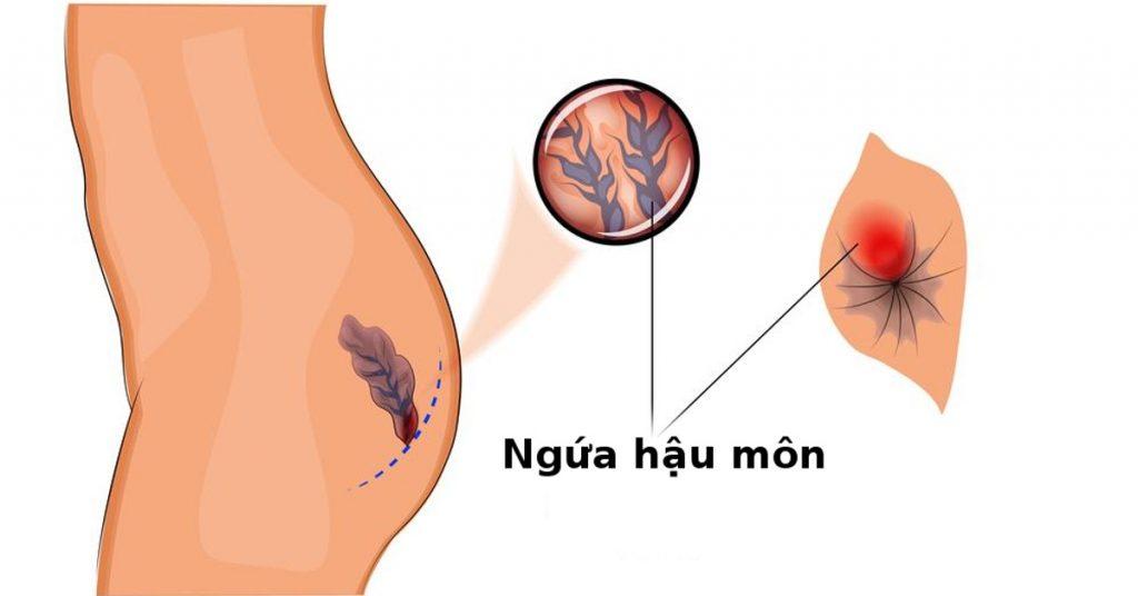 Cách đối phó với ngứa rát hậu môn sau sinh