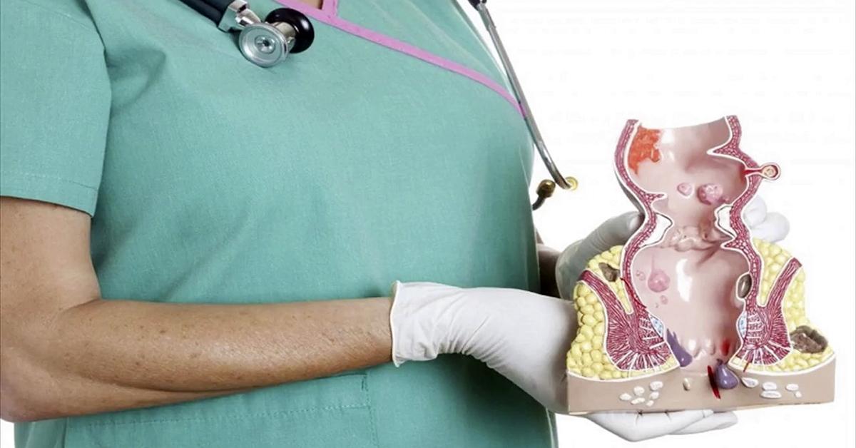 phẫu thuật trĩ ngoại có đau không
