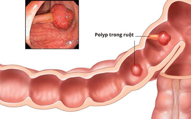 polyp đại tràng gây táo bón thường xuyên
