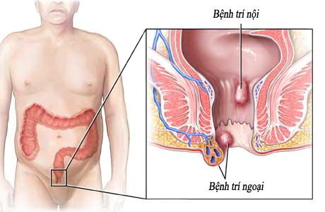 Bệnh trĩ ngoại có nguy hiểm không?