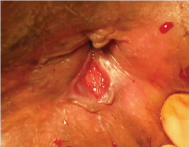 hình ảnh trĩ ngoại nhồi máu