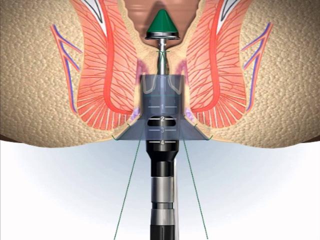 cắt trĩ bằng phương pháp longo