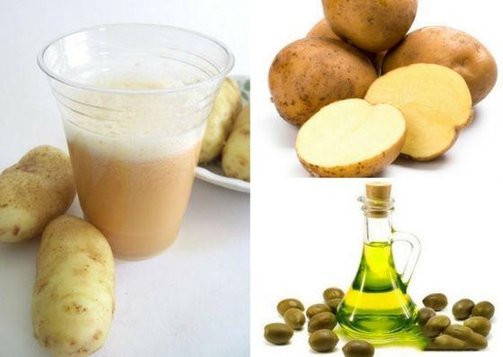 chữa bệnh trĩ bằng khoai tây với nhiều cách khác nhau
