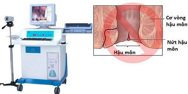 kỹ thuật xâm lấn tối thiểu cách chữa chảy máu ở hậu môn hiệu quả