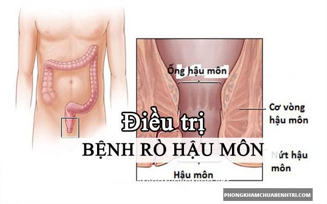 Điều trị rò hậu môn không cần phẫu thuật