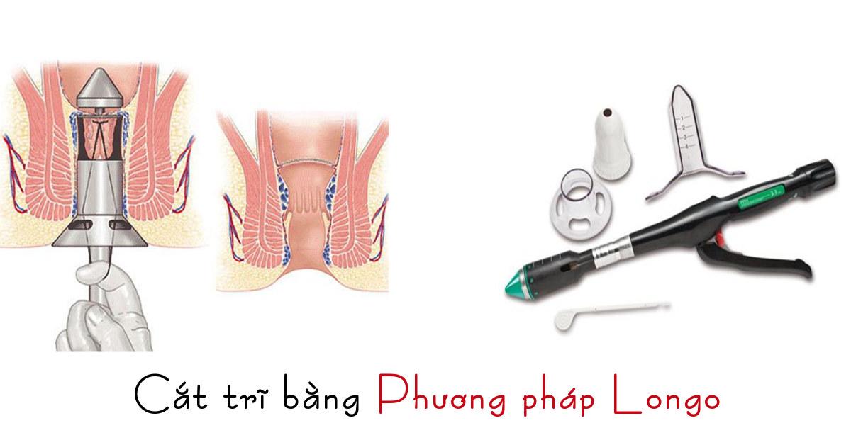 quy trình cắt trĩ bằng phương pháp Longo