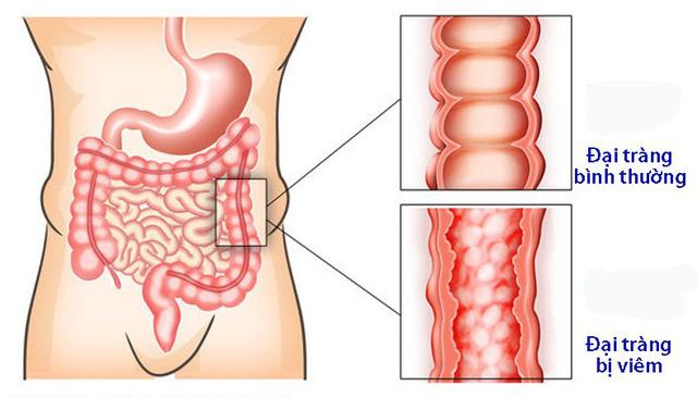 viêm đại tràng gây đi ngoài ra chất nhầy trắng