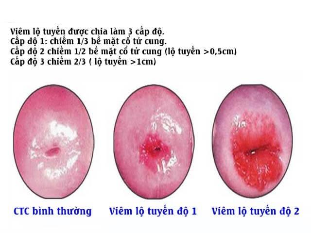 Đốt viêm lộ tuyến cổ tử cung ở đâu tốt? chi phí bao nhiêu?